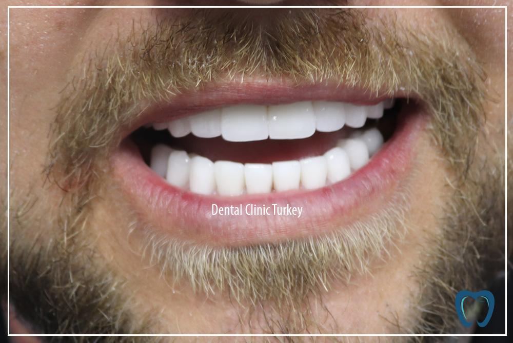 new teeth for man