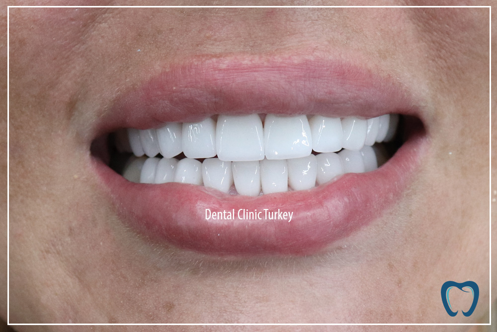 new teeth for woman