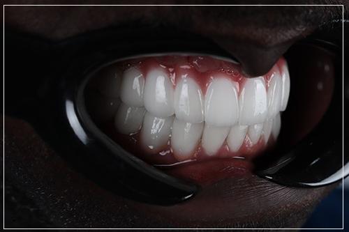 dental treatment for full mouth