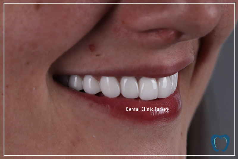 new teeth and smile design